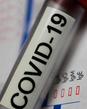 Анализ на антитела к коронавирусу (Coronavirus SARS-CoV-2)